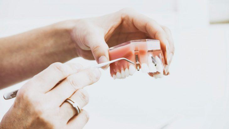sécurité sociale implant dentaire