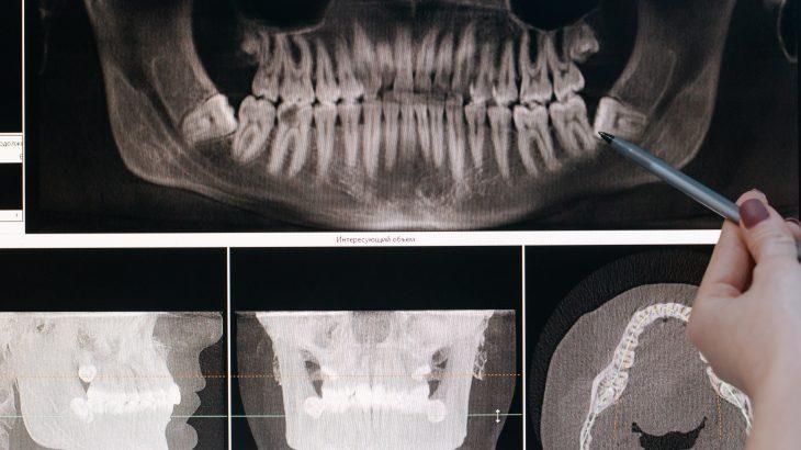 Comment cicatrise une dent arrachée