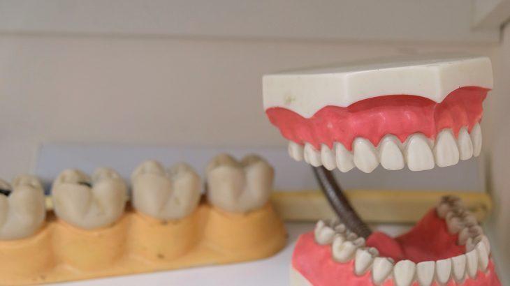 dentier provisoire