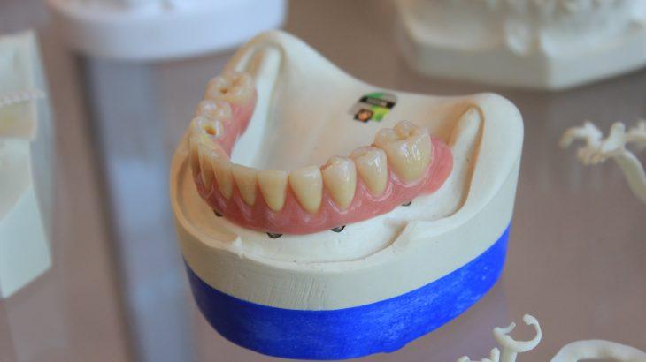 Quelles matières un dentier
